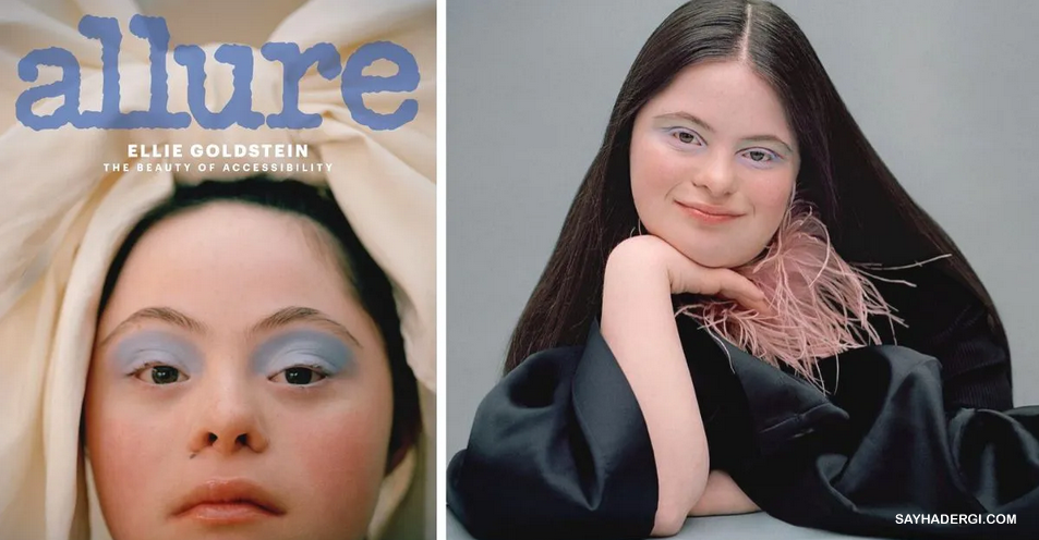 Penyandang Down Syndrome Terpilih Menjadi Model Kecantikan Majalah Allure